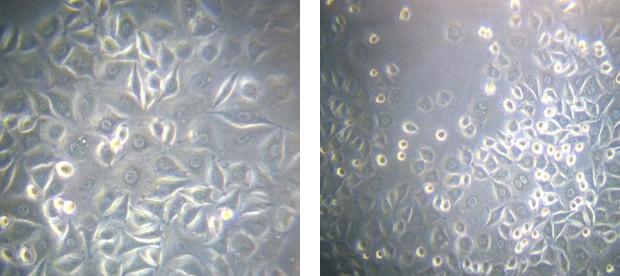 Microcyn Exposure
